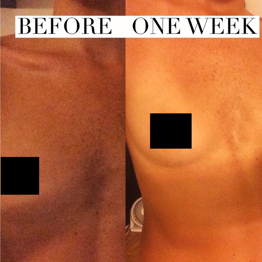 Breast Enlargement Massage Before And After